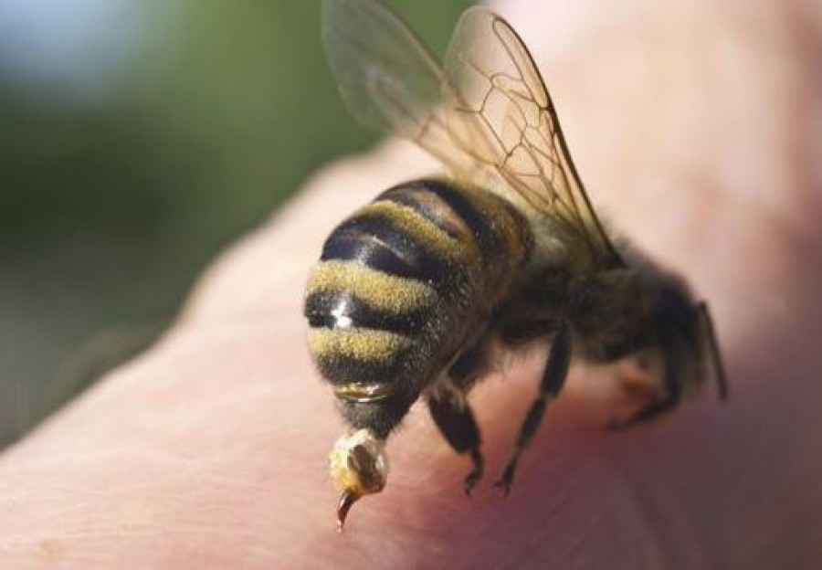A csípés után derül csak ki, hogy allergiás vagy-e rá. Ezek a legfontosabb tudnivalók, nehogy nagy bajba kerülj.